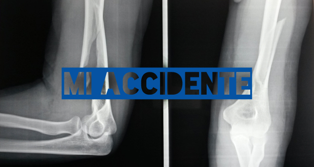 La historia de mi accidente: fractura de húmero